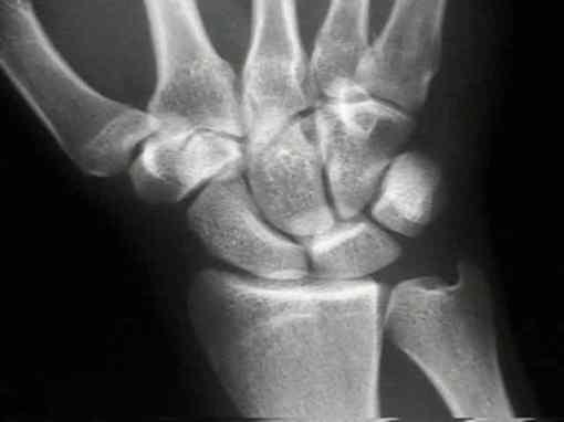 articulacion_protesis_cirugia_artroscopia