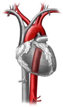 valvula_aortica_sin_cirugia